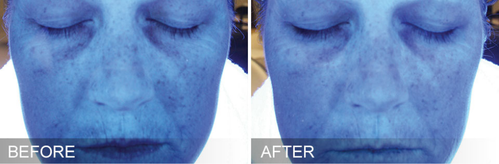 hydra facial before and after